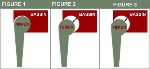 Schéma du bassin et du fémur